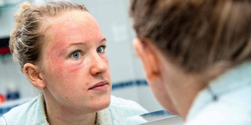 تمام اطلاعاتی که باید در مورد درمان اگزما پوست صورت بدانید