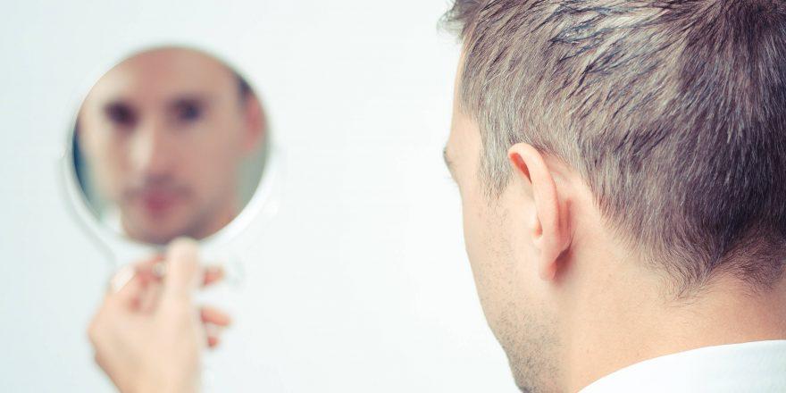 دلایل ریزش مو و روش درمان آن