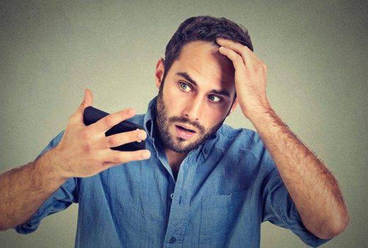ماینوکسیدیل و رویش موی جدید با استفاده از آن