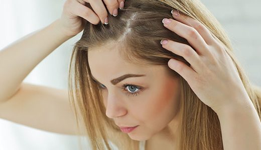 انواع ریزش موی سر و درمان آن