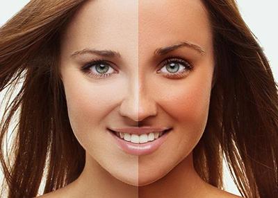 برنزه کردن پوست در تابستان با چند روش بدون ضرر