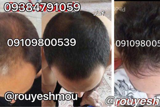رشد و تقویت مو با استفاده از زنجبیل