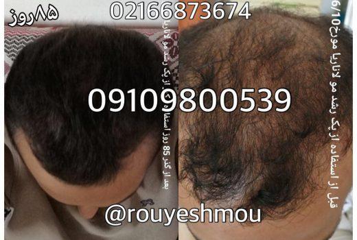 جلوی ریزش موی سر خود را بگیرید