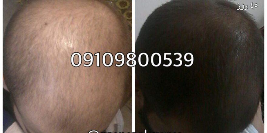 ریزش مو را کنترل کنید