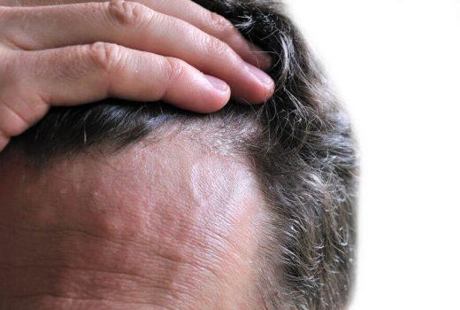 جلوگیری از ریزش مو و حفظ سلامتی آنها