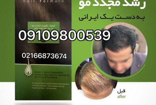 رویش مجدد مو به روش سنتی و گیاهی