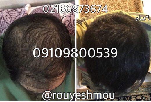 افزایش سرعت رشد مو در خانه